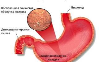 Лечение атрофического гастрита народными средствами