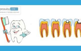 Эндогенная профилактика кариеса зубов – лекарственная (препаратами, фтором), безлекарственная