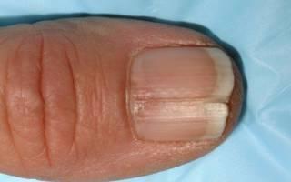 Трещины на ногтях рук причины и лечение