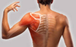 Боль под лопаткой и в области плеча сзади, причины, лечение