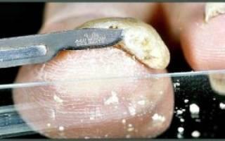 Где и как сдавать анализ на грибок ногтя