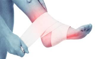Боль в голеностопе – к какому врачу обращаться и идти