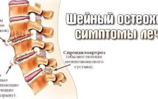 Хруст в спине и шее: причины и лечение