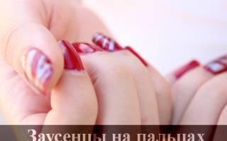 Заусенцы на пальцах рук: причины, лечение и профилактика образования заусенцев