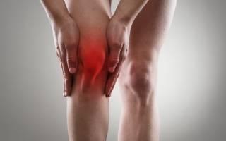 Болит колено: к какому врачу идти, к какому врачу обратиться, если болит коленный сустав