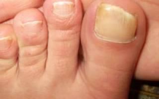 Какими способами можно размягчить ногти на ногах чтобы подстричь