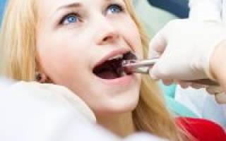 Запах изо рта после удаления зуба – причины и профилактика