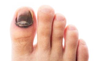 Эффективное лечение от грибка ногтя большого пальца ноги и руки