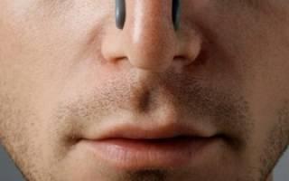 Искривление носовой перегородки: методы лечения, причины и последствия