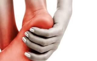 Лечение бурсита, как лечить бурсит