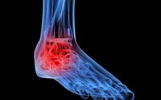Боли в стопе при ходьбе – причины, лечение, профилактика
