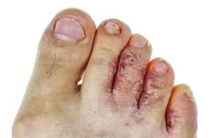 Эффективные средства против грибка на ногах между пальцами