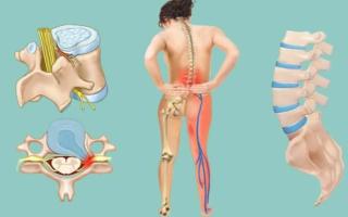 Болит поясница и немеют ноги: причины и лечение болей в спине и онемения ног