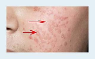 Юношеские плоские бородавки – симптомы, причины, лекарства