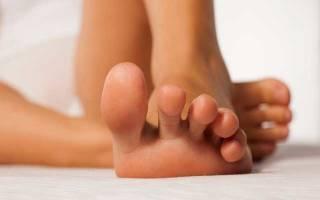 Народные средства от потливости ног – профилактика и методы лечения