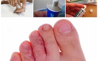 эффективные мази от грибка между пальцами на ногах
